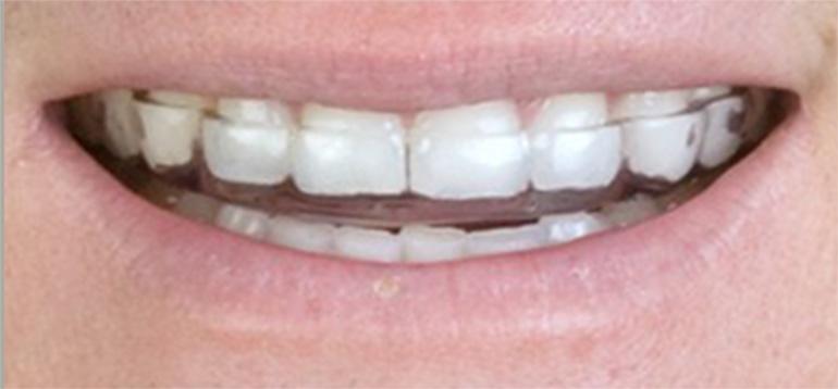 ■臼歯部挙上型スプリント